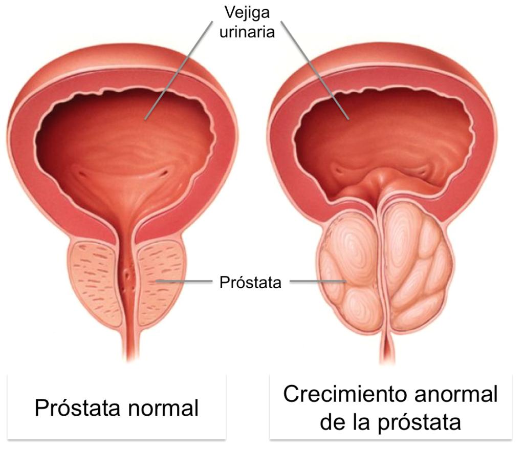 Problemas en la próstata