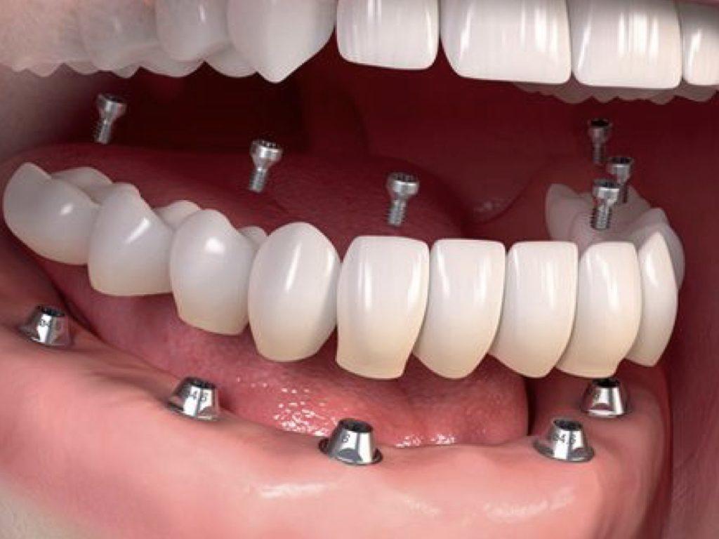 dobles implantes dentales